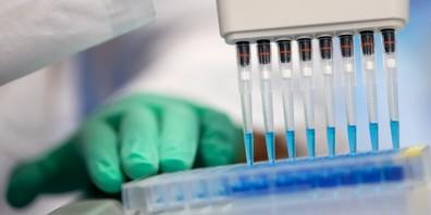 Es ist fraglich, wie lange die PCR-Tests noch gratis ausgewertet werden