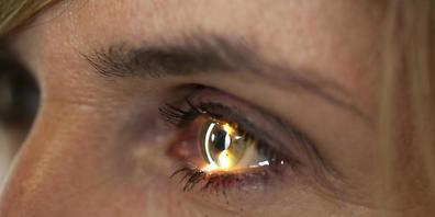 Novartis will mit der Übernahme seine Forschung im Bereich der Augenheilkunde erweitern.