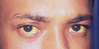 Gelbfärbung von Haut und Augen können ein Symptom von Hepatitis sein. Weltweit sind 354 Millionen Menschen mit Hepatitis infiziert. Über eine Million sterben jedes Jahr daran. Zum morgigen Welt-Hepatitis-Tag ruft die WHO zum vermehrten Testen auf,...
