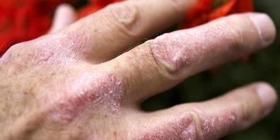 Schuppenflechte (Psoriasis) an der Hand eines Mannes: Medikamente gegen die Hautkrankheit, die den Botenstoff Interleukin-12 blockieren, sind wohl kontraproduktiv, wie eine neue Studie zeigt. (Archivbild)